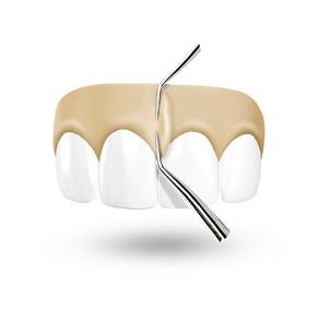 Betäubung Zahnarzt Schneller Weg